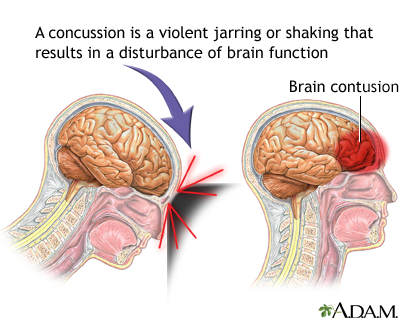 Signs of a Concussion - What To Look Out For may differ from